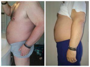 rechts:Vorher/Links:nach 21 Tagen strenge Phase